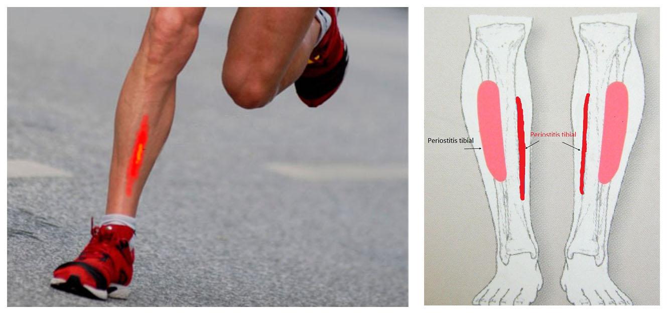 Periostitis Tibial : Imagen de de la zona donde se produce esta inflamación