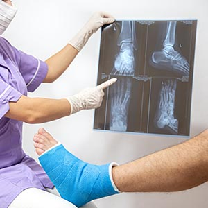 Fisioterapeuta de uan clínica de fisio en Almería trata la lesión de tobillo de un paciente.